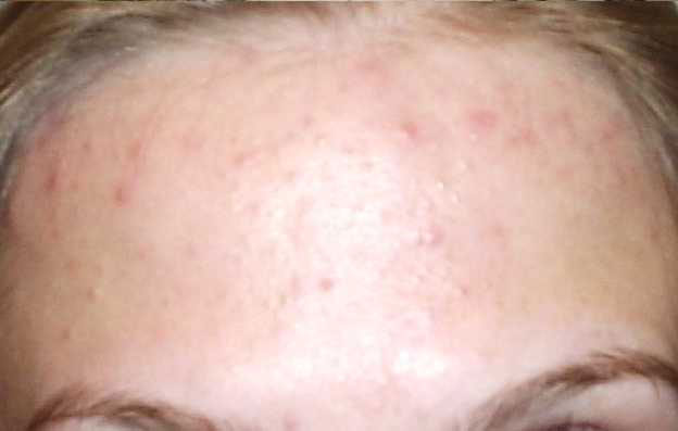 Дисбактериоз сыпь на лице