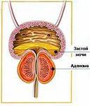 Какое лекарства принимать от простатита