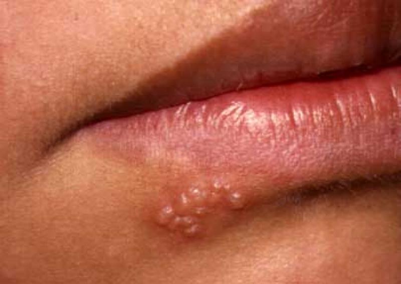 Чому з'являється герпес на губах? - Вірусологія - Медичний словник та медична термінологія (Медицина)